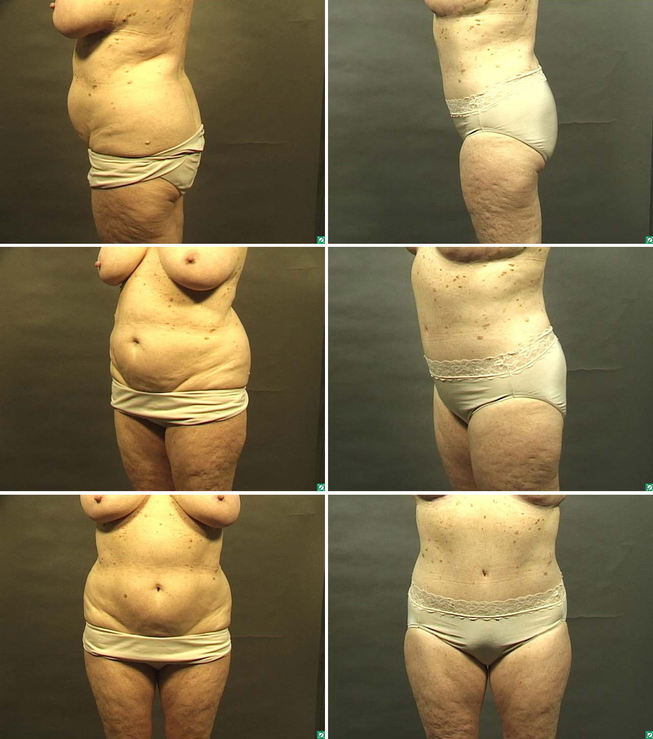tummy tuck before  u0026 after photos abdominoplasty dallas