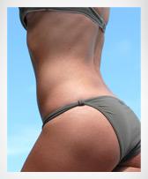 liposuction dallas