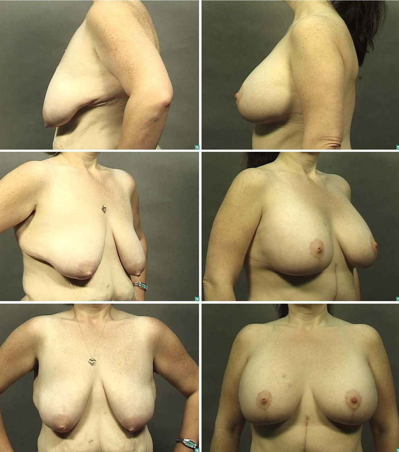 Nude before and after weight loss pics