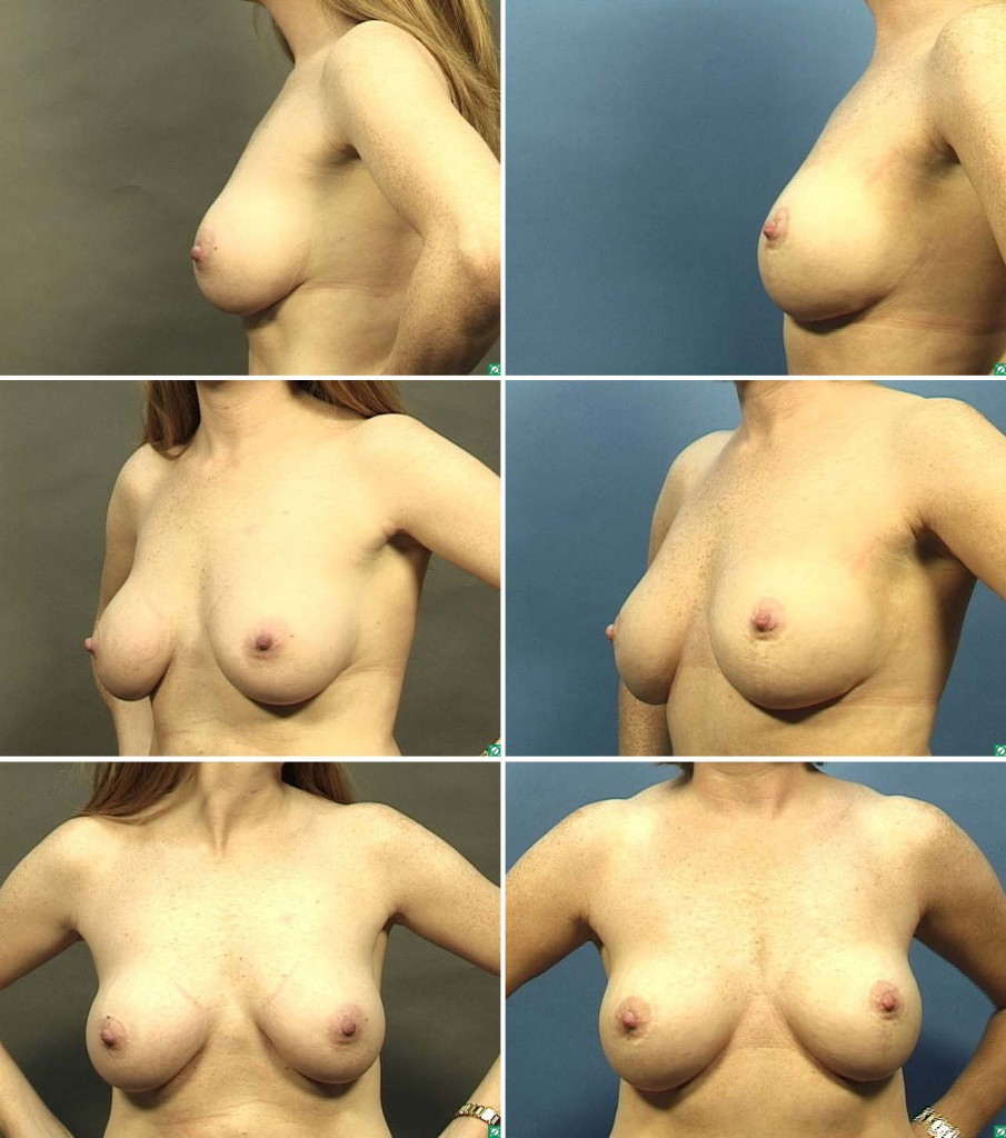 Breast Lift with Implants Photos Dr Aaron Gorin, MD,