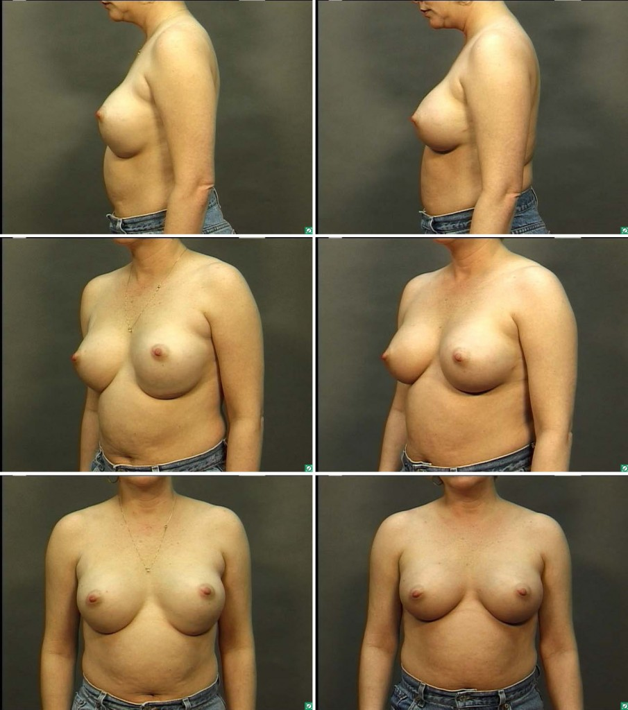 Breast augmentation revision augmentation texas worth