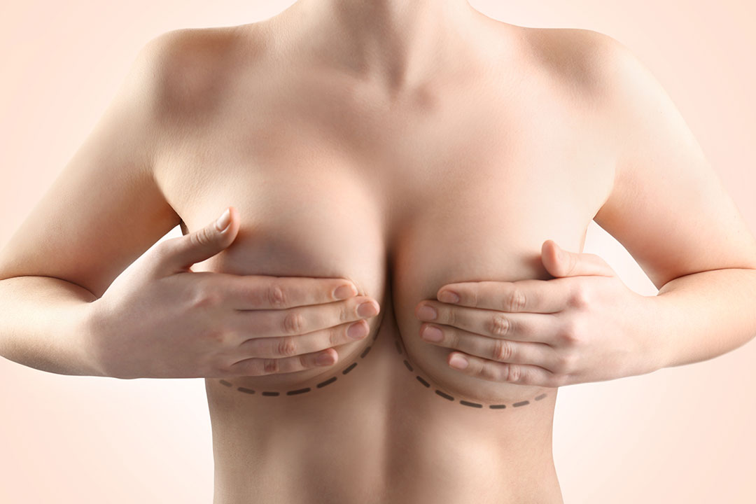 Causes and Treatment for Double Bubble after Breast Augmentation - Dr Mark Deuber