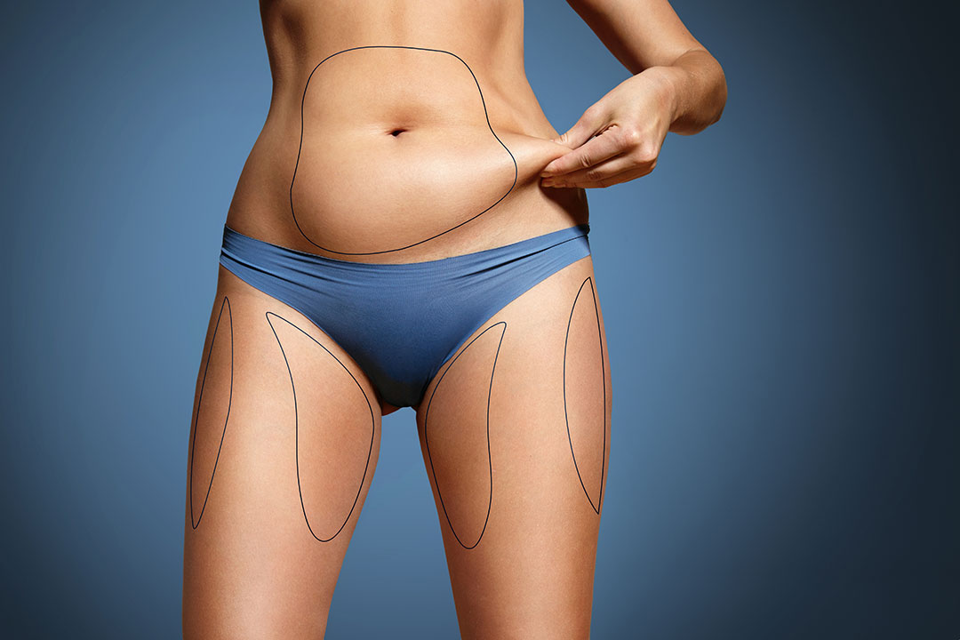 Subcutaneous versus Visceral Fat: Which Can Liposuction Remove? - Dr Mark Deuber
