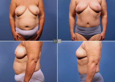 Dr Mark Deuber MD Mommy Makeover Before and After