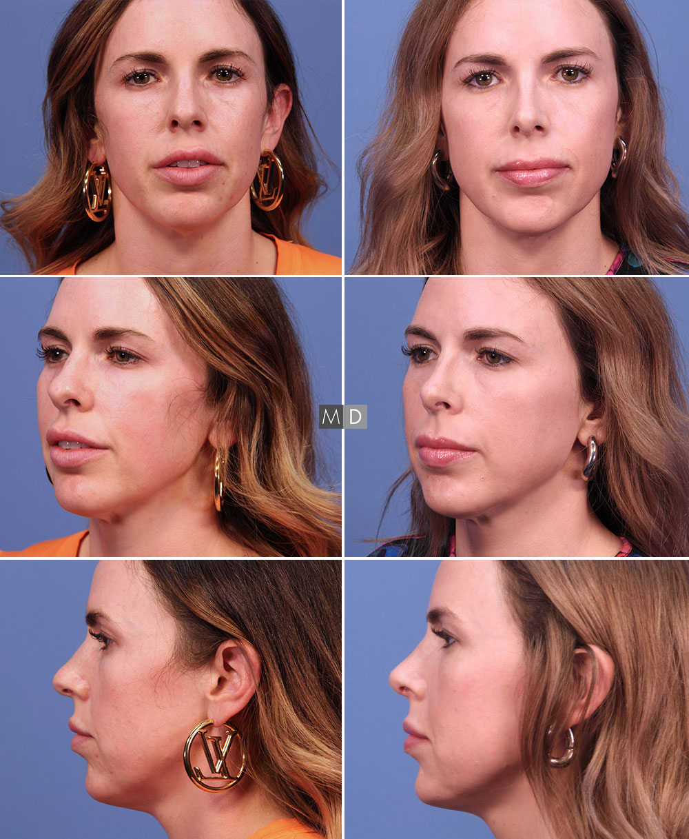 Dr Mark Deuber MD Rhinoplasty Before and After