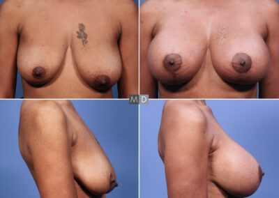 Dr Mark Deuber MD Breast Augmentation with Lift Before and After