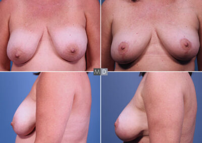 Dr Mark Deuber MD Breast Lift Before and After