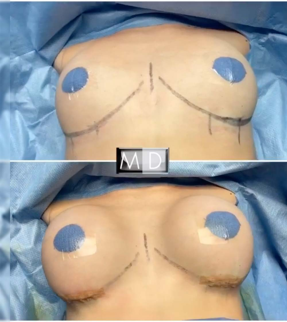 Dr. Mark Deuber MD Breast Augmentation Before and After