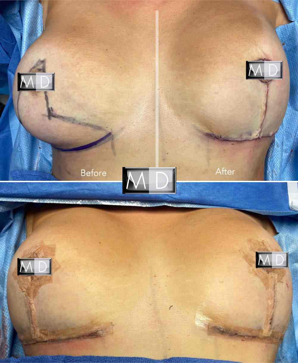 Dr Mark Deuber MD Breast Reduction Before and After2